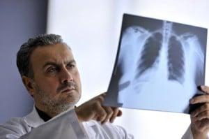 maladies respiratoires liées à l'amiante